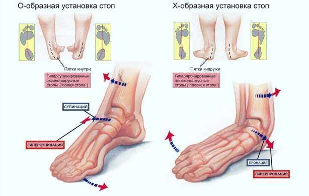 Бег при боли в суставах зарядка для суставов от доктора бубновского